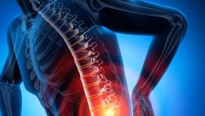 Rückenbeschwerden Skoliose