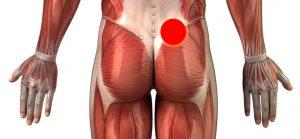 Rückenschmerzen unterer Rücken rechts